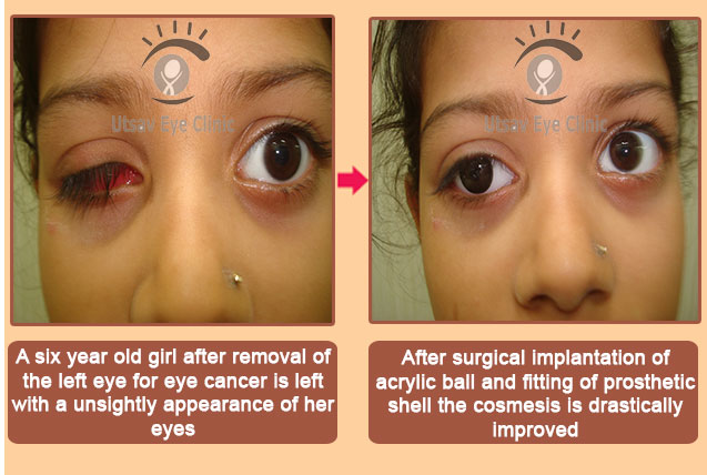 Artificial Eye – surgical treatment