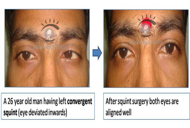 Convergent Squint – surgery