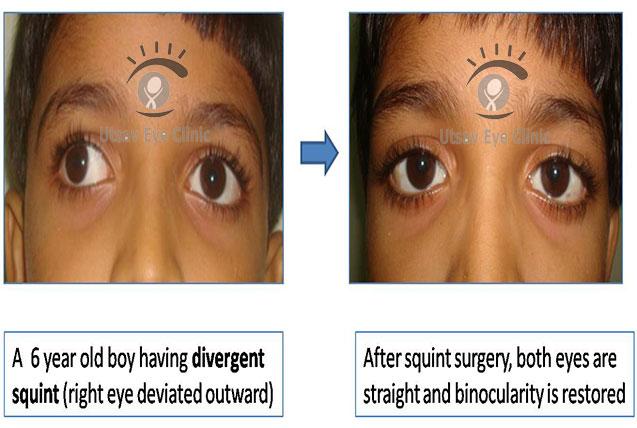 Divergent squint – surgery